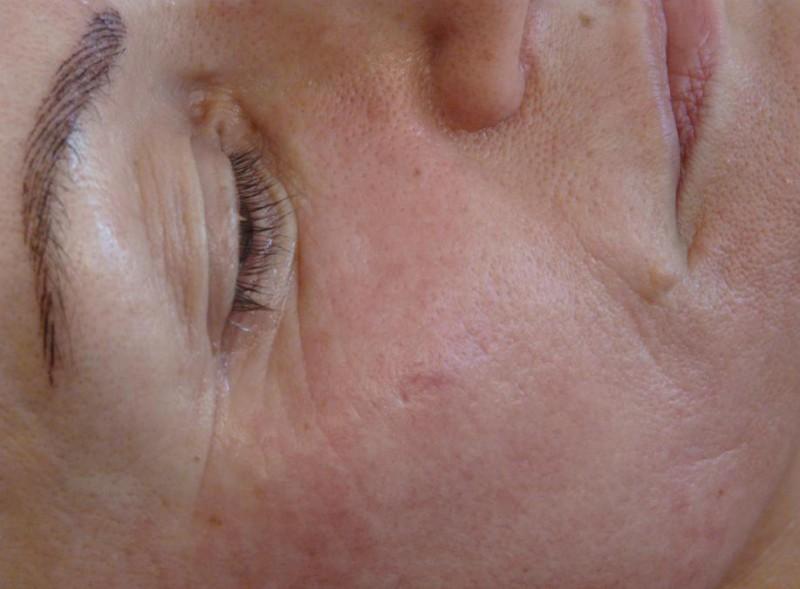 photo - Beauty Defect Repair